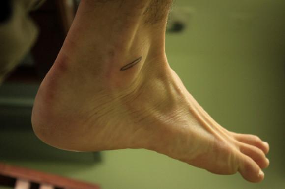 Un croquis en mi pie derecho de la herida que apareció en aquel entonces en el izquierdo.